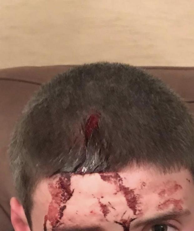 Barrhead News: The young victim was left with a gaping head wound