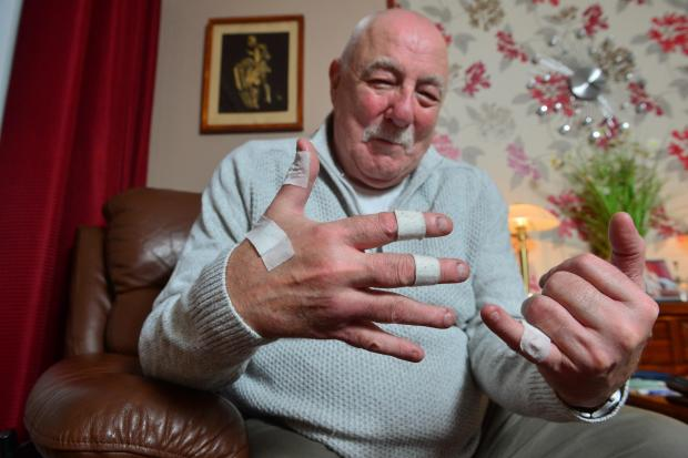 Barrhead News: William suffered injuries to his hand